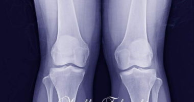 骨粗鬆症の自然療法